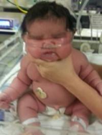 Nace una bebé de 6,2 kilos en EEUU