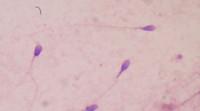 El semen disminuye la eficacia de los microbicidas contra el VIH