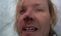 Un alpinista herido logra ser rescatado tras subir un vídeo a Facebook