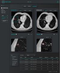 Desarrollan un nuevo sistema para identificar nódulos indicadores de posibles cánceres pulmonares mediante Inteligencia Artificial