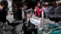 Mueren 50 personas y 150 resultan heridas en el atentado suicida en Kabul