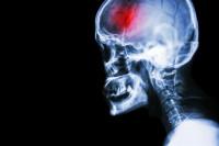Cada año fallecen en España más de 27.000 personas por enfermedades cerebrovasculares