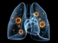El cáncer de pulmón de células pequeñas es de mal pronóstico
