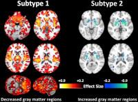 Investigadores descubren un segundo tipo de esquizofrenia que puede darse en cuatro de cada diez pacientes