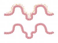 Cómo evitar el impacto negativo de los antibióticos en nuestra flora intestinal