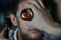 Cómo el láser lasik te puede cambiar la vida