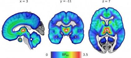La edad, el sexo y el tabaquismo influyen en la función de los receptores de opiáceos en el cerebro, según estudio